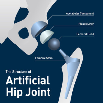 hip-replacement-lawsuit