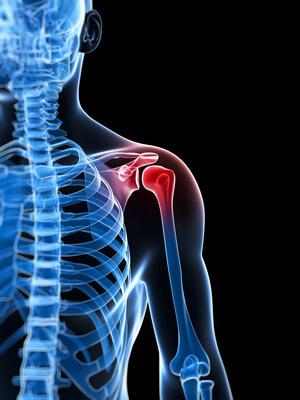 Shoulder-rotator-cuff-pain